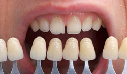 Dental Veneers Novi MI
