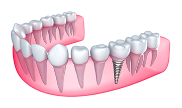 Dental Implants Novi, MI Dentist