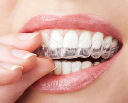 Invisible Braces in Novi, MI